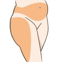 liposuctie